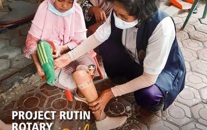 Project Rutin Rotary Surabaya Timur KAPAL (Kaki Palsu)