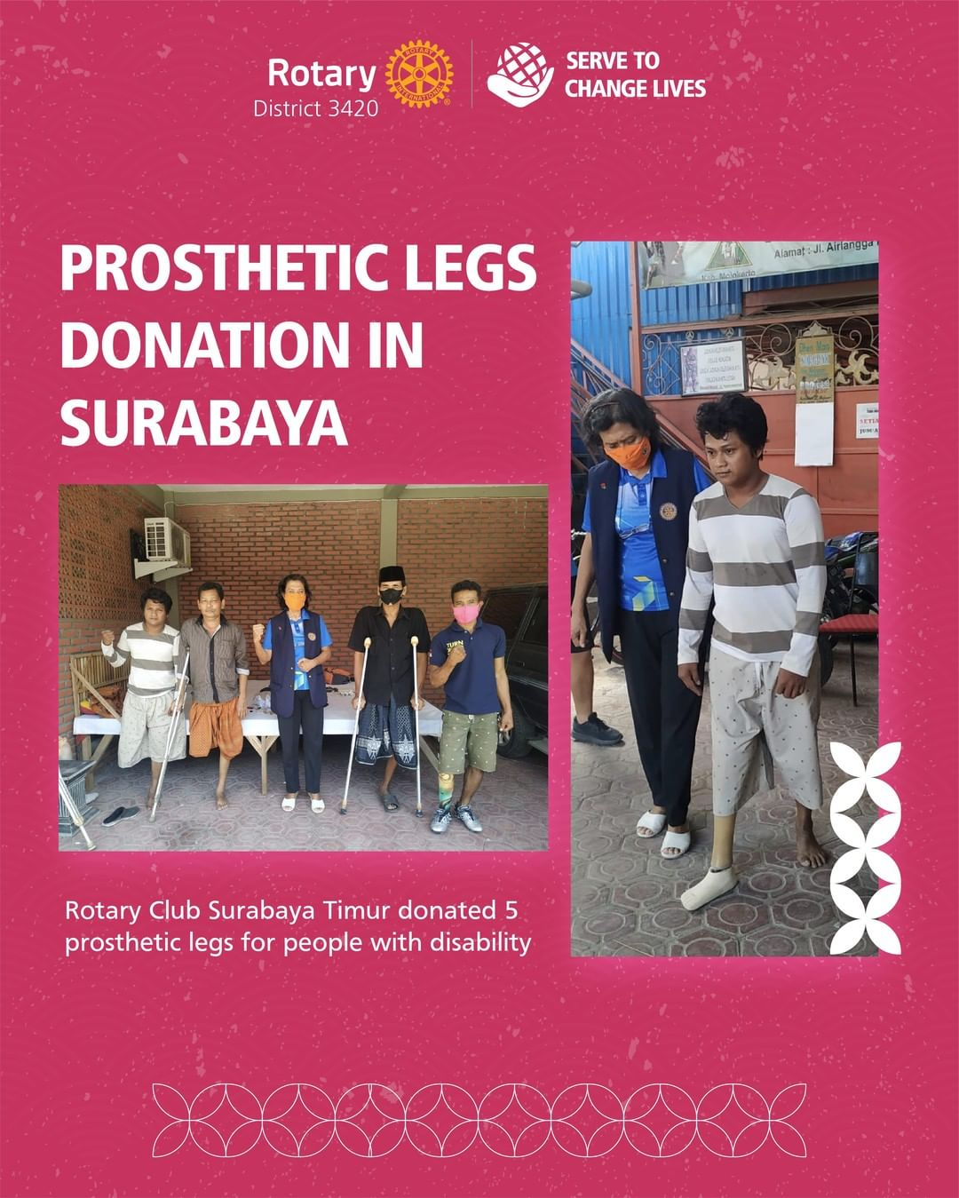 Prosthetic Legs Donation in Surabaya